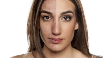 British Skin Association (BSA), research more wholesome acne treatments