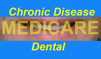 Provide Dental Medicare for People with Chronic Disease