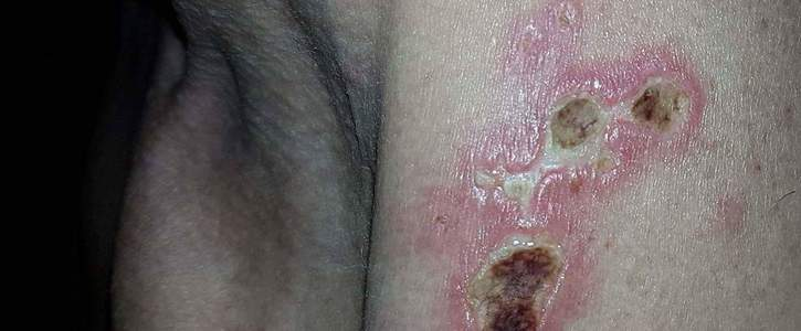 Morgellons Patients are human Beings