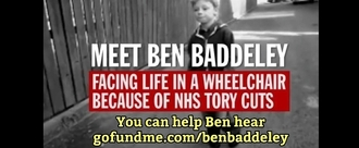 Help Ben walk without pain