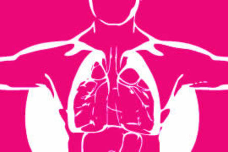 Pleural Plaques compensation in England and Wales
